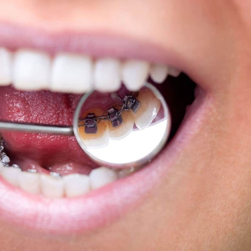 Dental mirror reflecting traditional brace